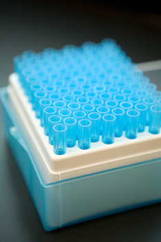 Testing Follows Positive TB Result At The Haven